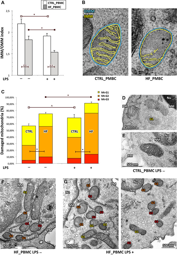 Quantitative analysis of ultrastructural damage in mitochondria from HF_ and CTRL_PBMCs.