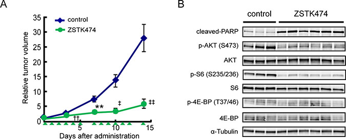 In vivo antitumor activity of ZSTK474 in Ewing's sarcoma cell lines.