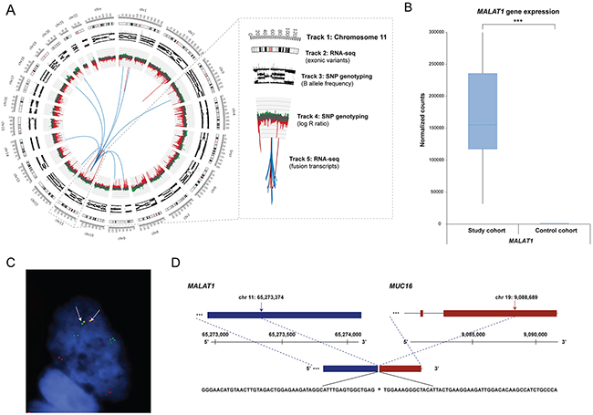 Genomic rearrangements for ovarian sample OV315, MALAT1 gene expression pattern, and FISH validated fusion transcript.