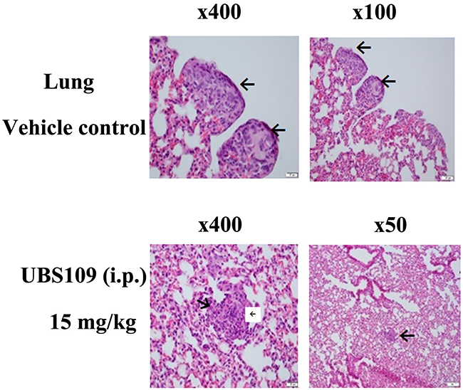 Hematoxylin and eosin stains of the breast tumors in the lungs.