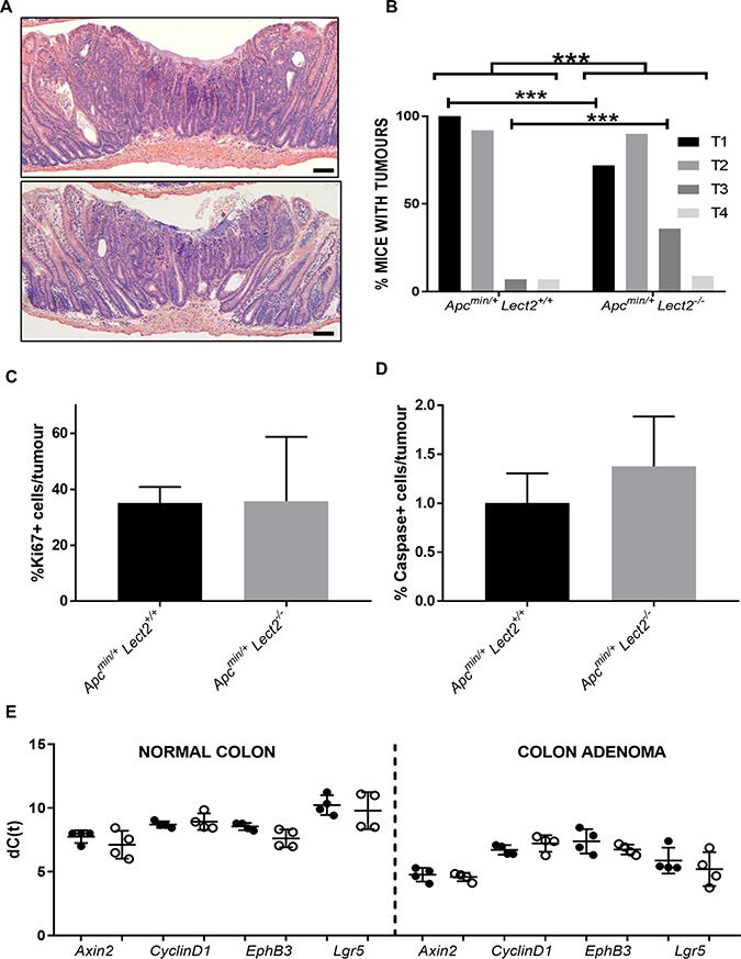 Loss of Lect2 accelerates Wnt-activated tumour progression.