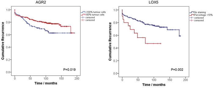Kaplan-Meier curves assessing the probability of PCa biochemical recurrence after radical prostatectomy by AGR2 and LOX5.