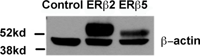 Western blot showing expression of ERβ2 and ERβ5 where the first lane is control transfected (empty transposon system without variant cDNA), then ERβ2 or ERβ5 stably transfected PC3 cells in lanes 2 and 3.