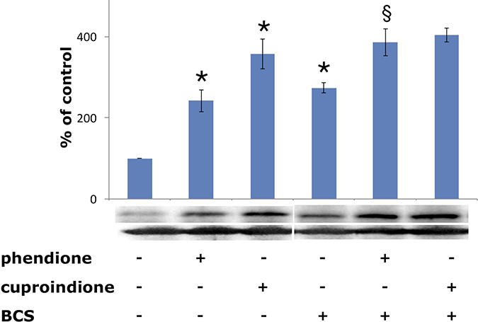 Expression of p53 in SH-SY5Y cells after a 48-hr treatment with phendione and cuproindione IC50 concentration in the absence and in the presence of 50 μM BCS.