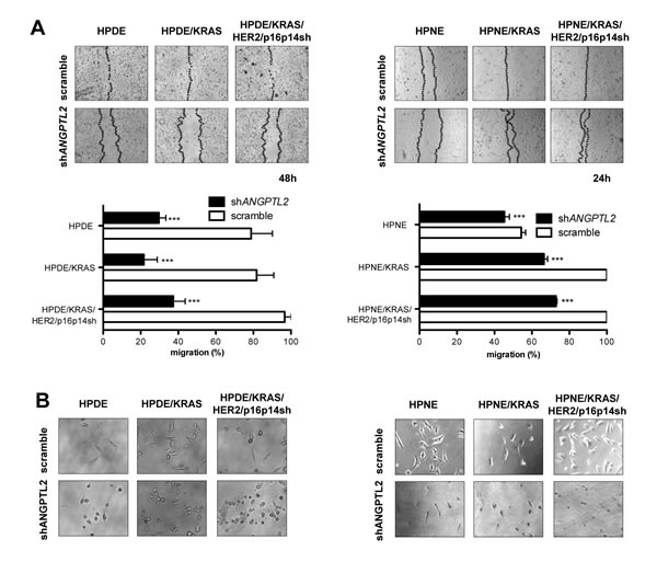 Silencing the expression of ANGPTL2 modulates migratory properties in HPDE and HPNE /KRAS, /KRAS/HER2/p16p14shRNA cell lines.