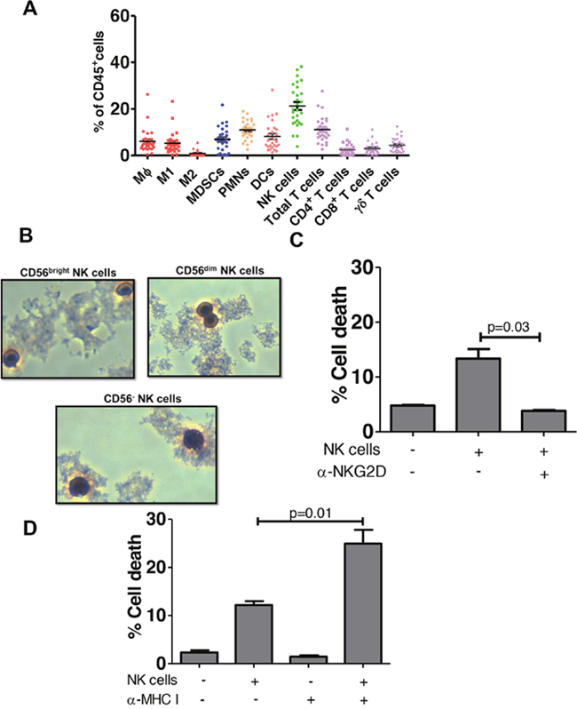 NK cells predominate among bladder intratumoral lymphocytes.