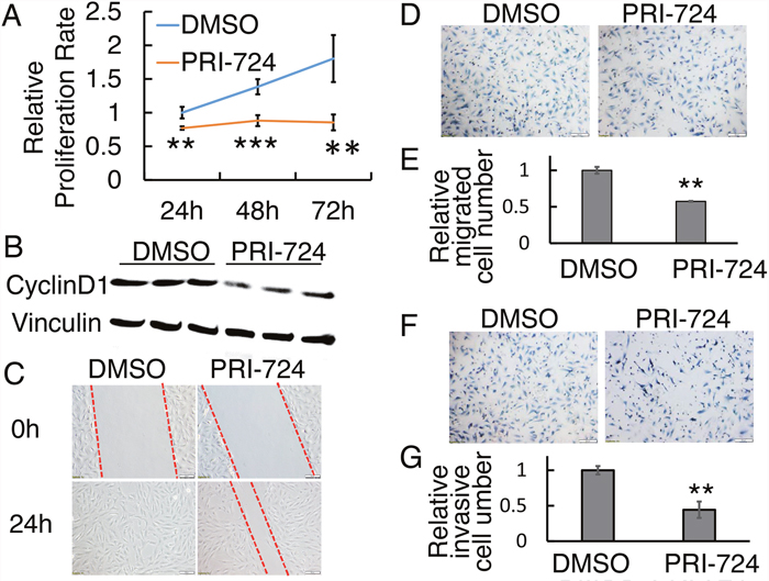 Effect of PRI-724 on SJSA-1 cell proliferation, migration, and invasion.