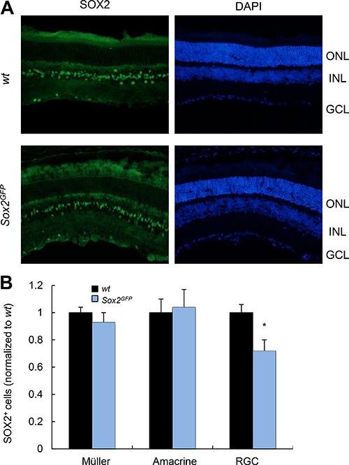 Young Sox2-haploinsufficient mice have normal numbers of retinal cells.
