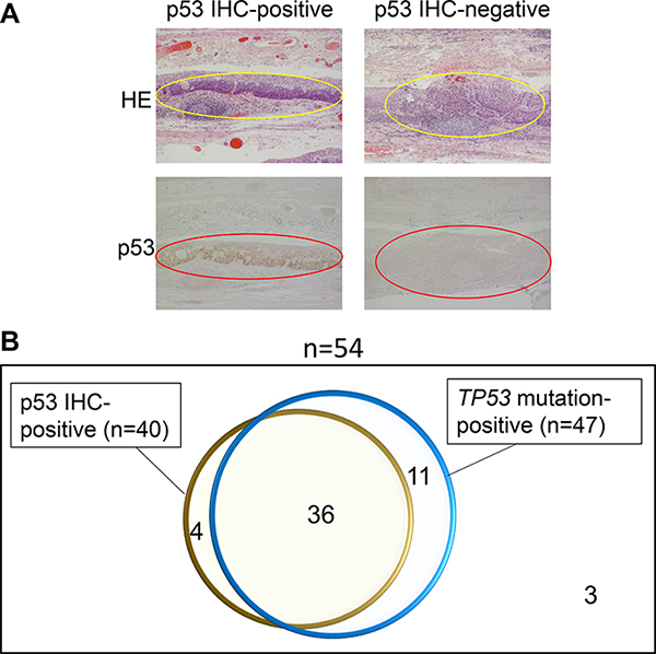 Immunohistochemical (IHC) staining for p53 was performed for 55 esophageal neoplasia specimens and the results were compared to the results of NGS TP53 mutation analysis.