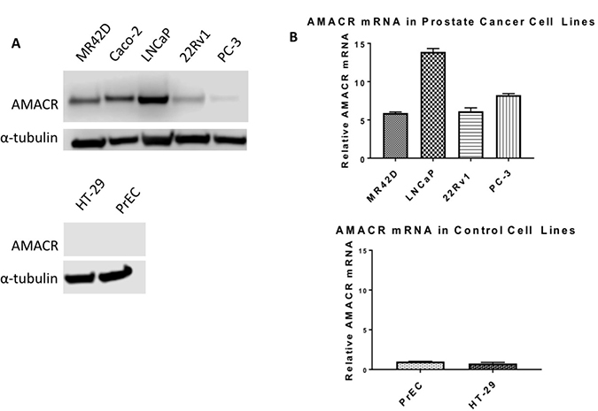 Overexpression of AMACR in prostate cancer cell line models.