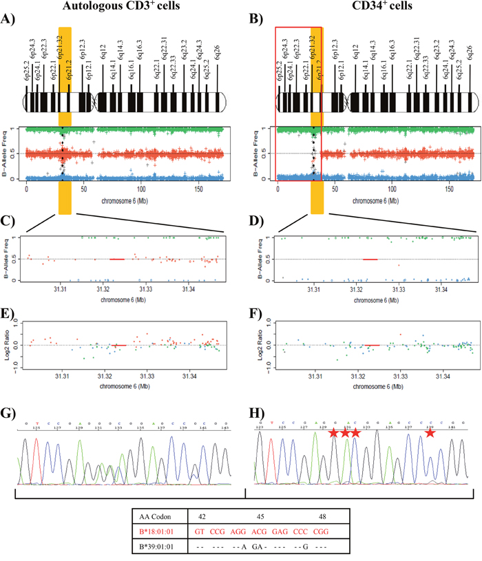 Results of SNP array on chromosome 6 and of the HLA Sanger sequencing of the patient 10.