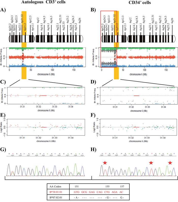 Results of the SNP array on chromosome 6 and the HLA Sanger sequencing of the patient 22.