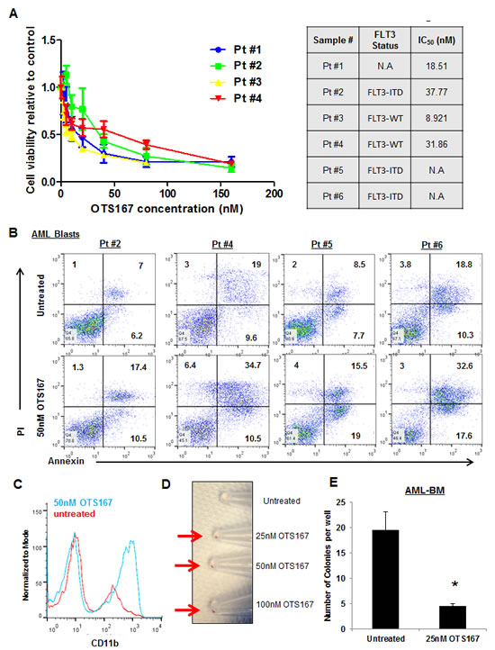 Growth suppressive effect of MELK inhibitor OTS167 in AML primary blasts.