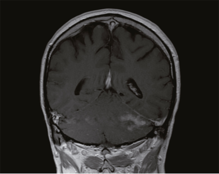 MRI brain of patient 1 before treatment showing a lesion in the cerebellum.