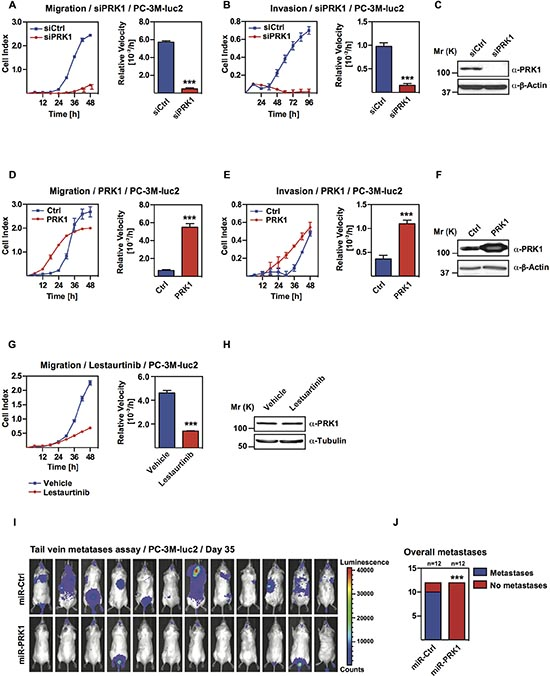 PRK1 controls migration and invasion of androgen-independent prostate cancer cell lines and determines development of metastases in vivo.