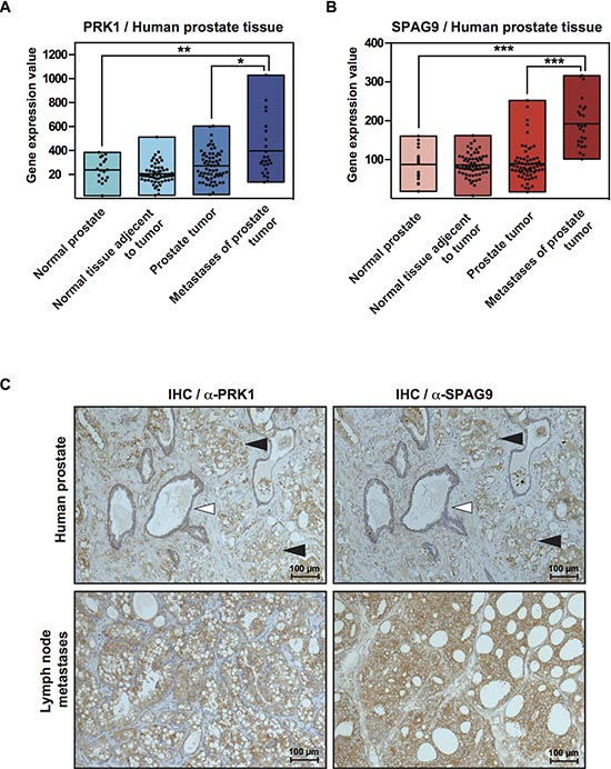 PRK1 and SPAG9 are overexpressed in human prostate cancer tissue.