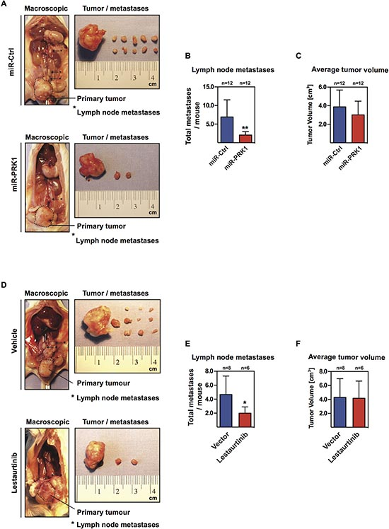 PRK1 controls metastases in an orthotopic prostate mouse model.
