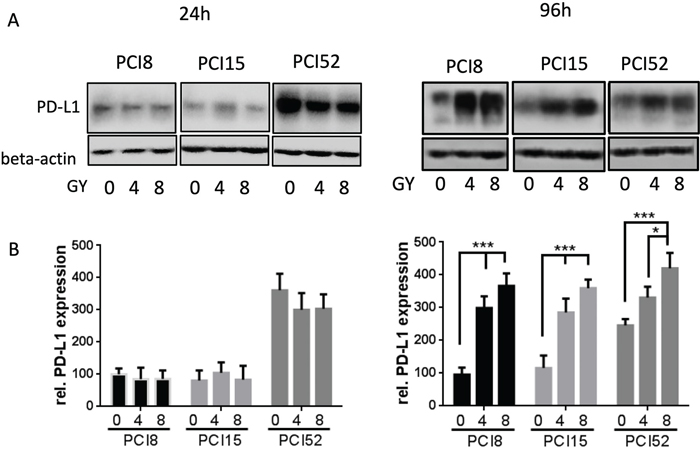 (A) PD-L1 protein expression after irradiation.
