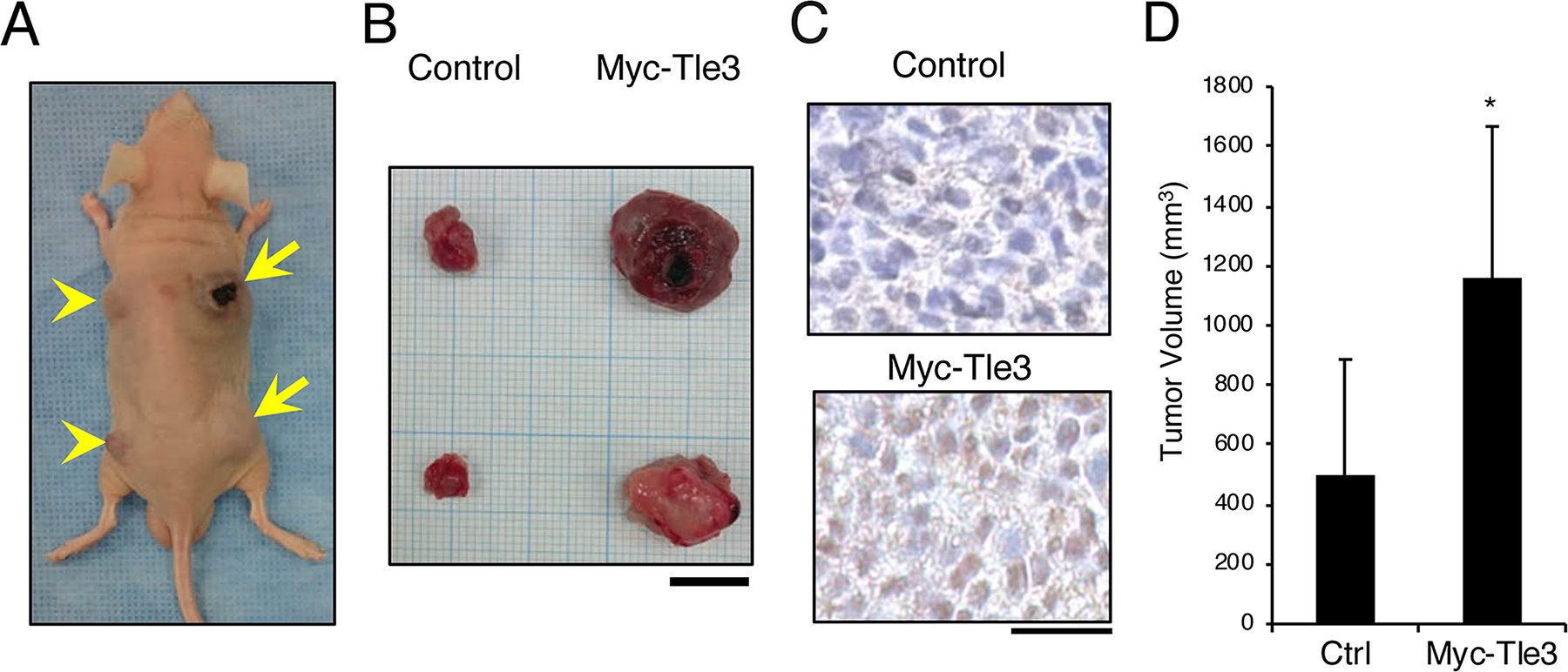 Overexpression of Myc-Tle3 in subcutaneously injected B16 melanoma cells increases tumor size in vivo.