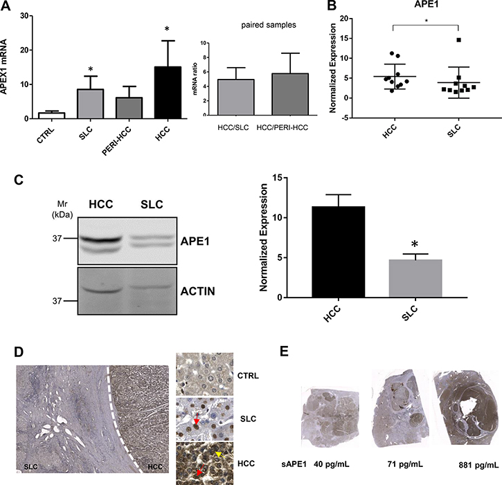 APE1 expression in HCC tissues.