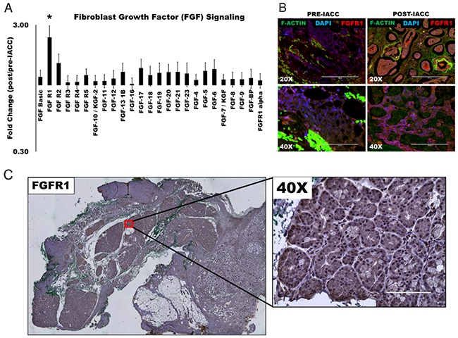 Fibroblast growth factor (FGF) signaling is upregulated following IACC in LGACC tumors.