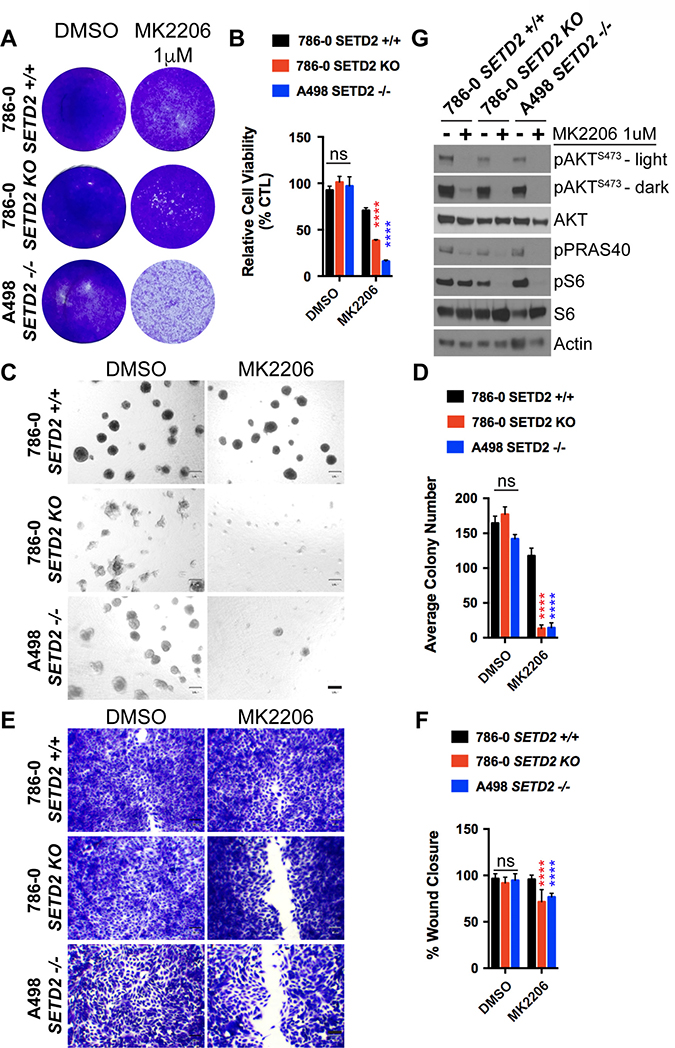 AKT-specific inhibitor MK2206 decreases cell viability, spheroid formation, and migration of SETD2 deficient ccRCC-derived cells.