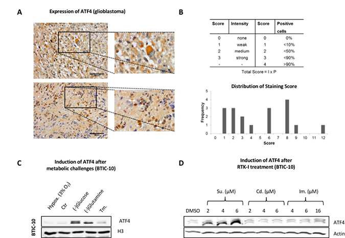 ATF4 protein expression in human resection material and response to metabolic challenges and RTK-Is in vitro.