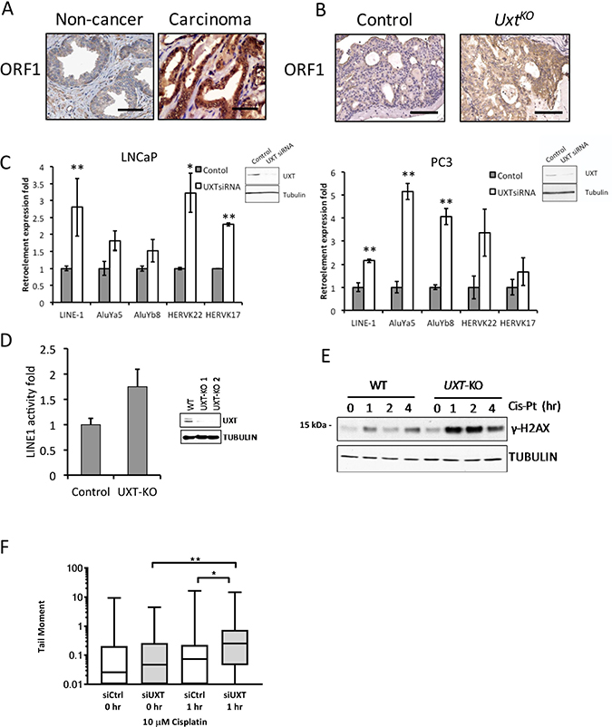 Loss of UXT in prostate promoted LINE-1 retroelement expression and retrotransposition.