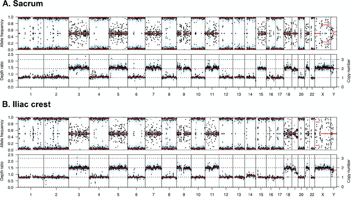 Copy number and B allele plots from two samples from the same patient.