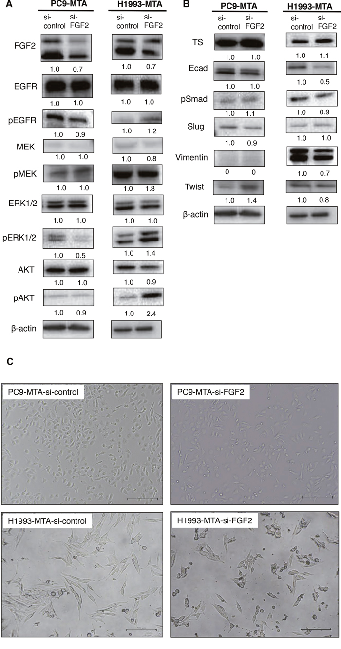 Effects of FGF2 knockdown on signaling pathway molecules and EMT marker proteins in the parental and pemetrexed-resistant lung cancer cells.