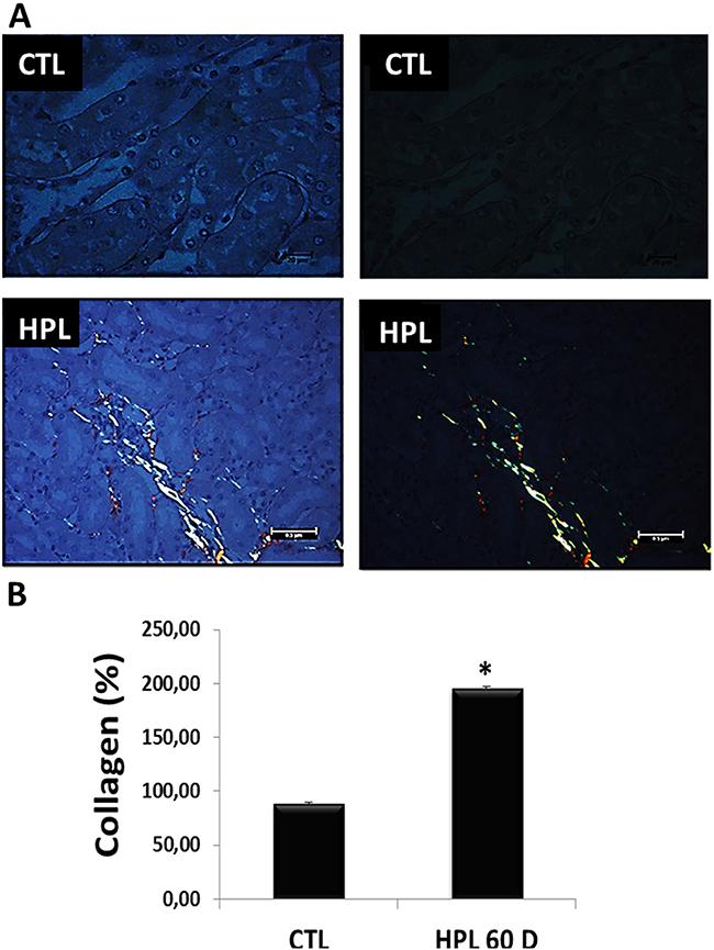 Evaluation of fibrotic marker in vivo.