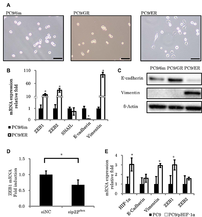 Morphologic changes consistent with epithelial to mesenchymal transition (EMT) in EGFR-TKI resistant lung adenocarcinoma cell lines.