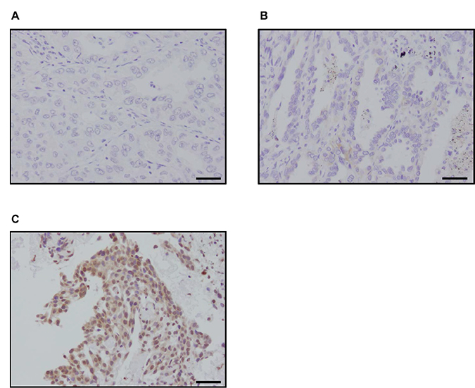Immunohistochemistry of p22phox in patients with lung adenocarcinoma.