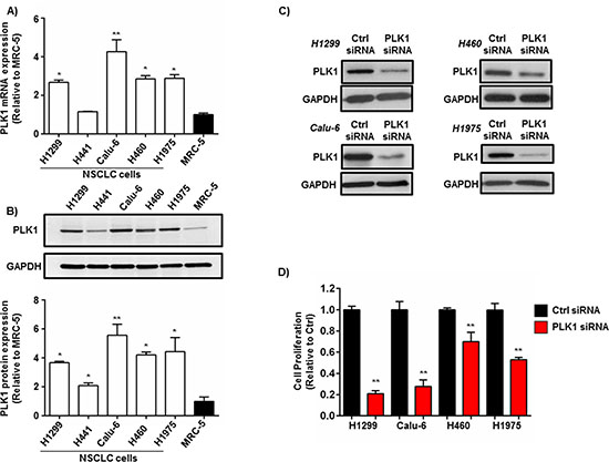 PLK1 expression in NSCLC cells and the effect of PLK1 knockdown on NSCLC cell proliferation.