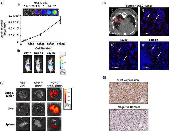Establishment of a NSCLC bioluminescent mouse model and iNOP-7 siRNA delivery in vivo.