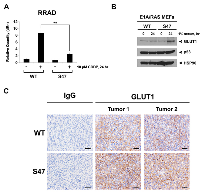 Decreased induction of RRAD and increased expression of GLUT1 in cells and tumors containing the S47 variant.