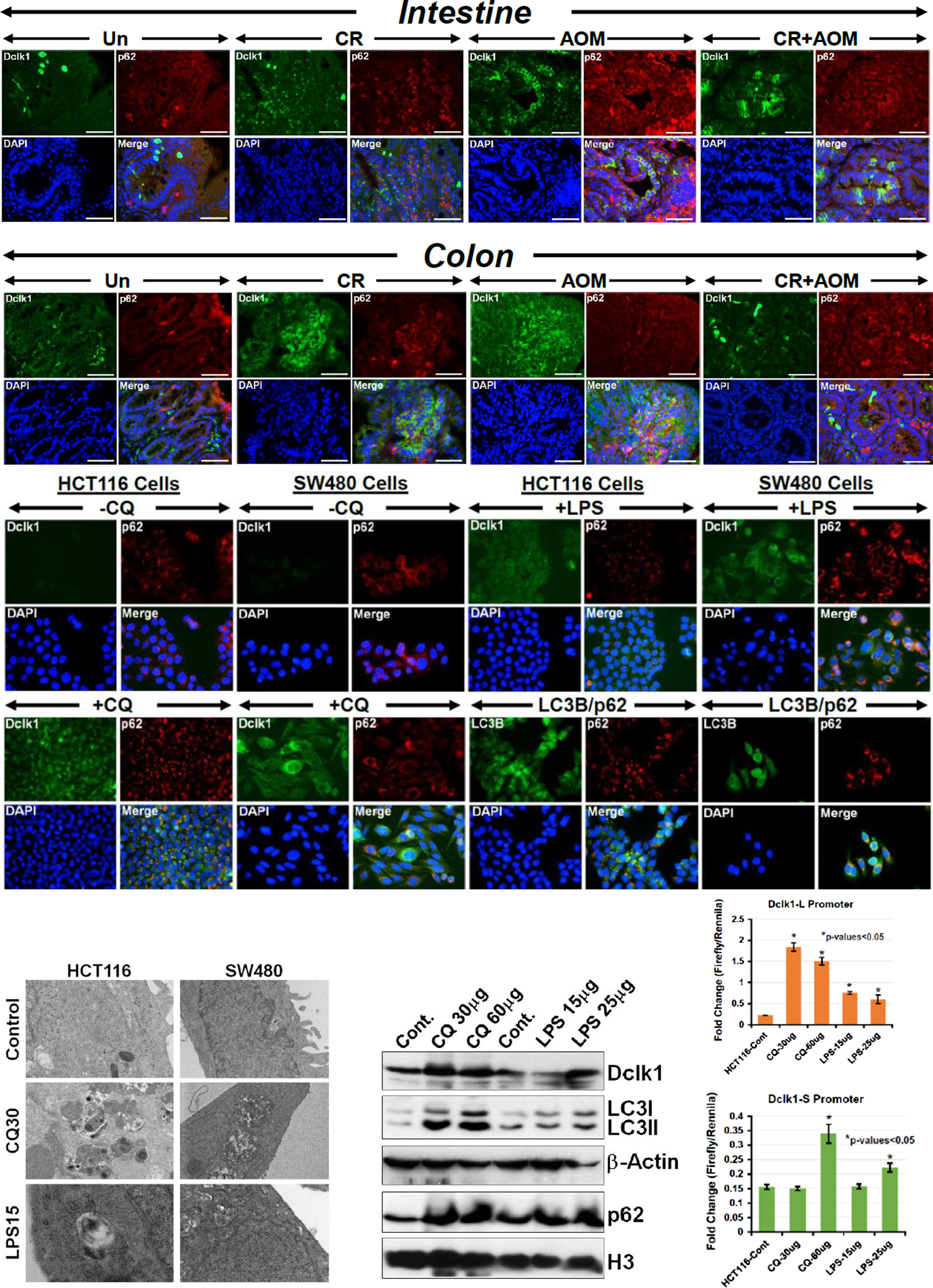 Oncotarget | Co-localization of autophagy-related protein p62 with