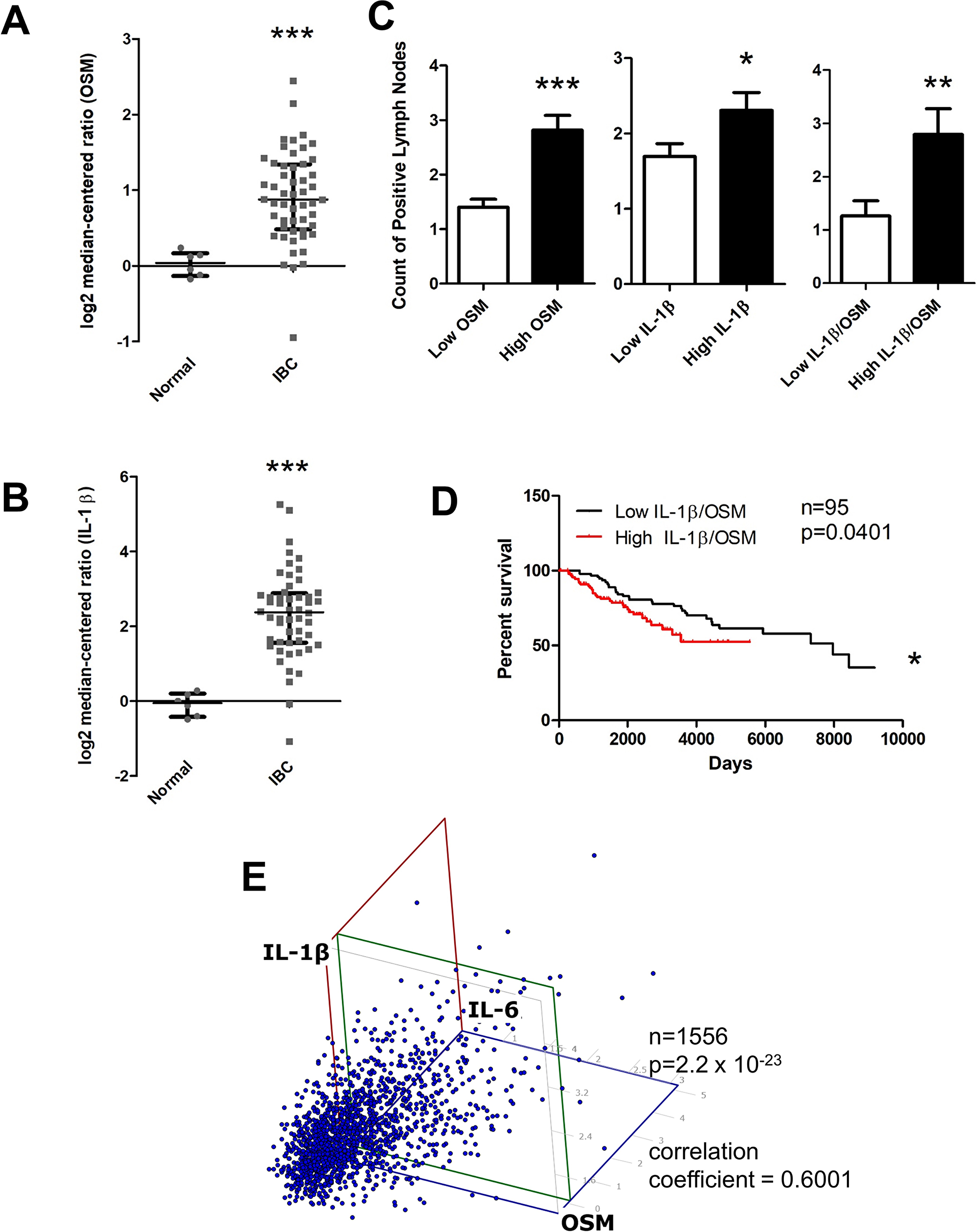 OSM and IL-1β expression is higher in invasive breast cancer compared to normal tissue and correlates with higher lymph node metastasis, decreased survival, and IL-6 levels.