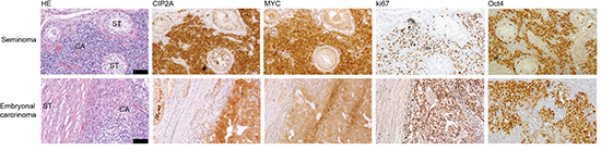 CIP2A is co-expressed with MYC, ki67 and Oct4 in testicular cancers.