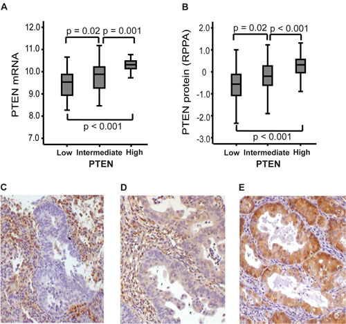 Immunohistochemical staining of PTEN associates with mRNA and protein RPPA-expression.