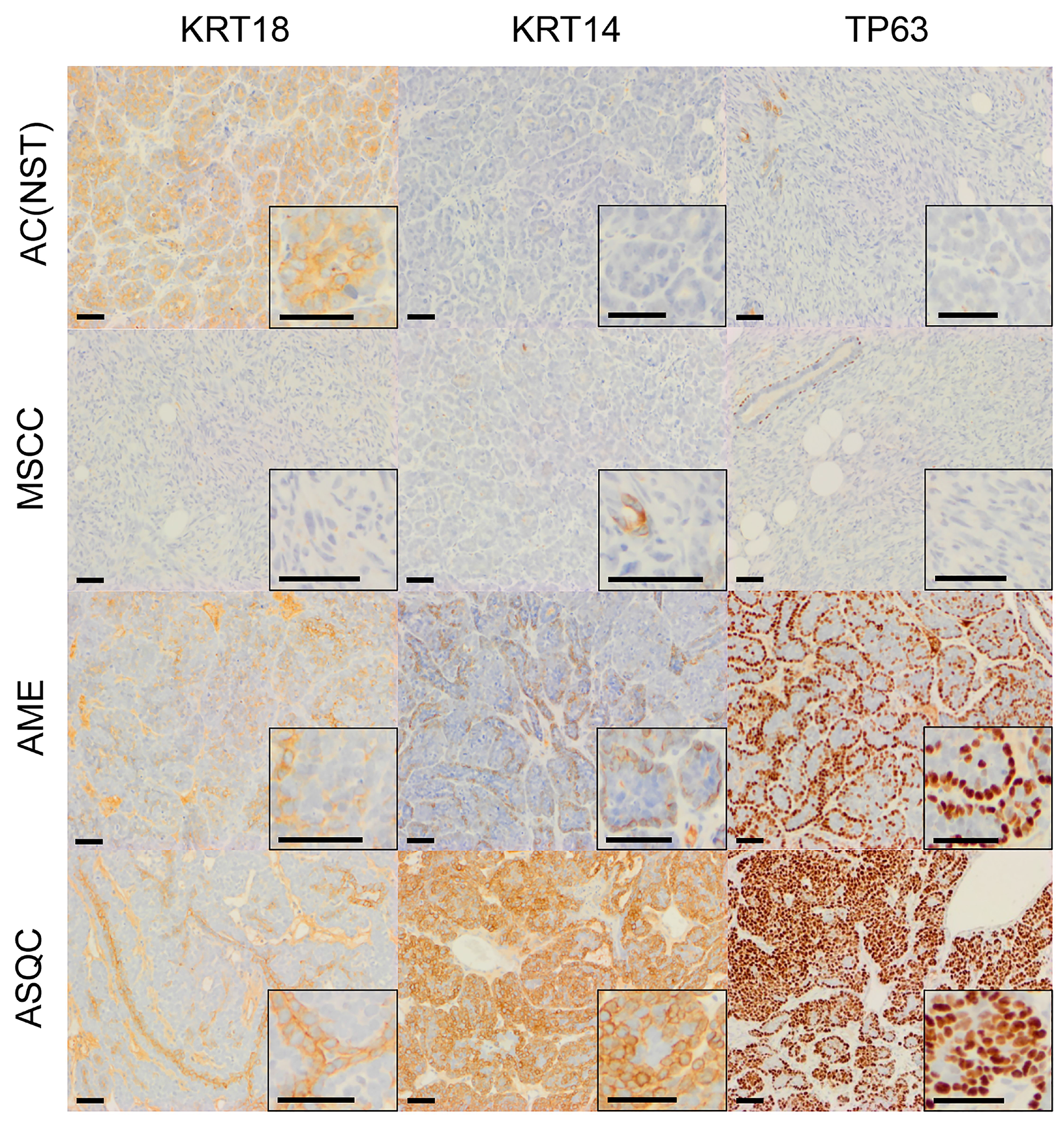 Immunohistochemical staining of olaparib-naïve tumours of different phenotypes in the Blg-Cre Brca2/p53-mutant mammary tumour model.