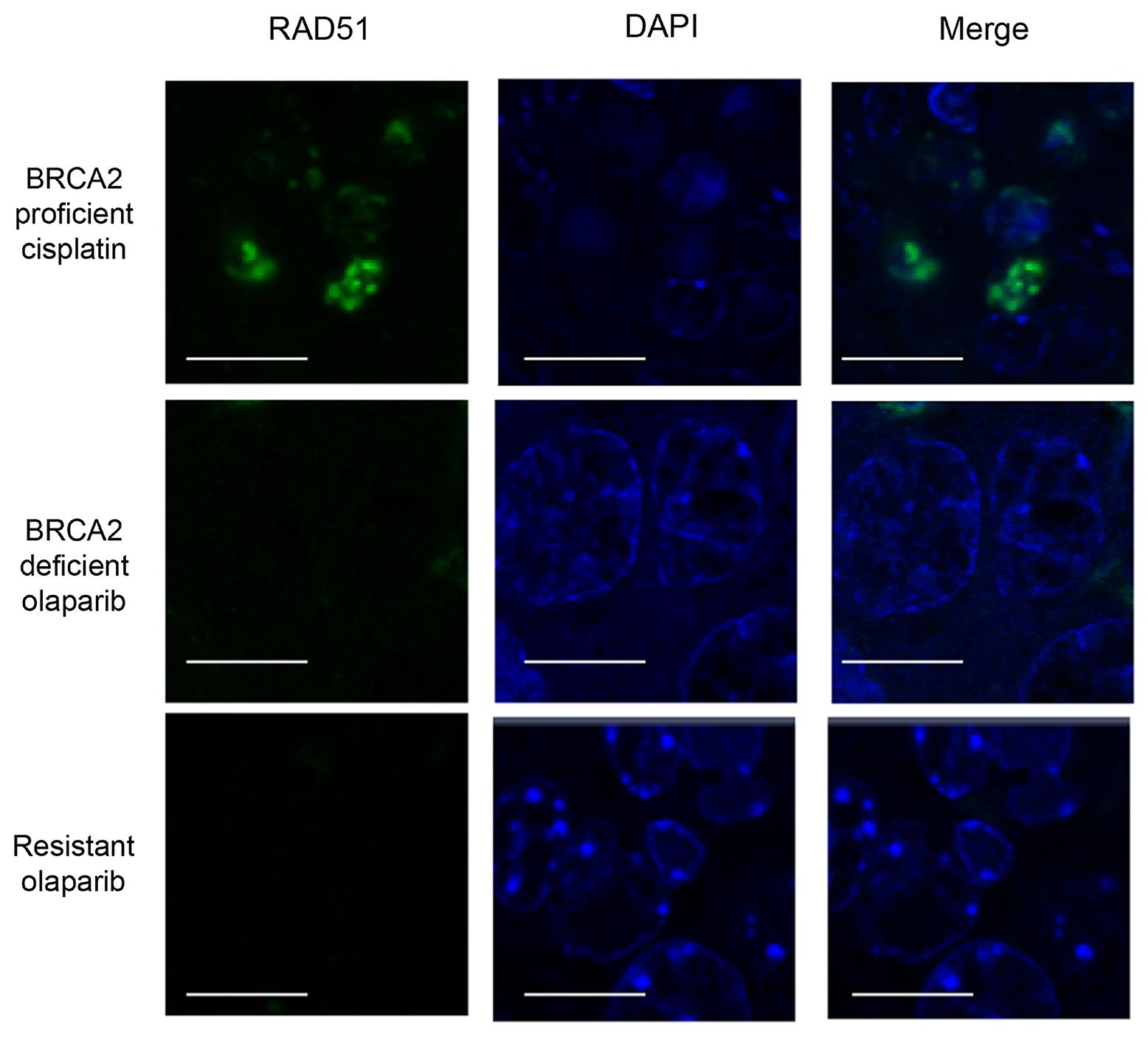 Olaparib-resistant tumours do not have Rad51 foci.