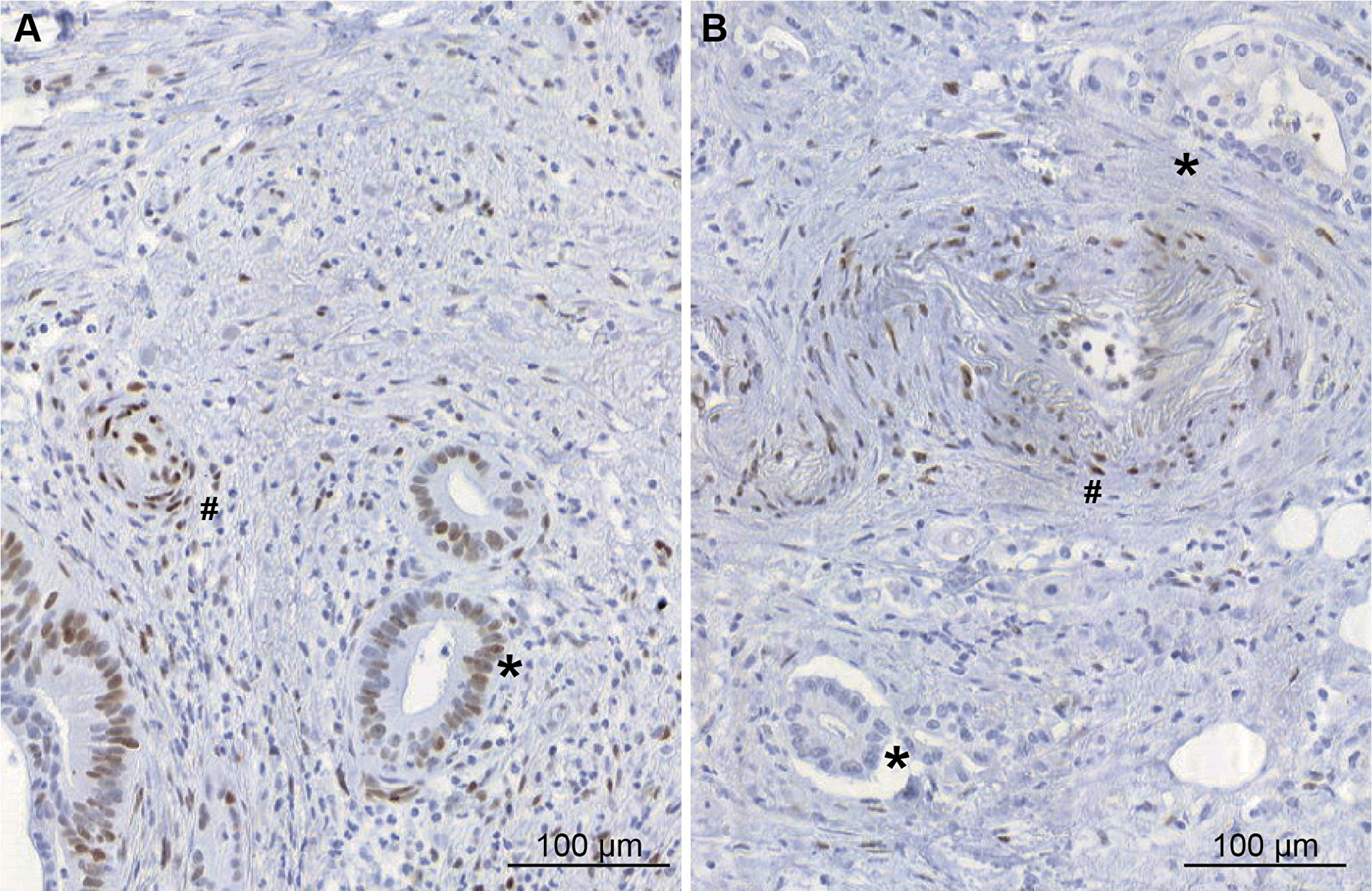Immunohistochemical study of pSTAT3 expression in pancreatic adenocarcinoma tissues