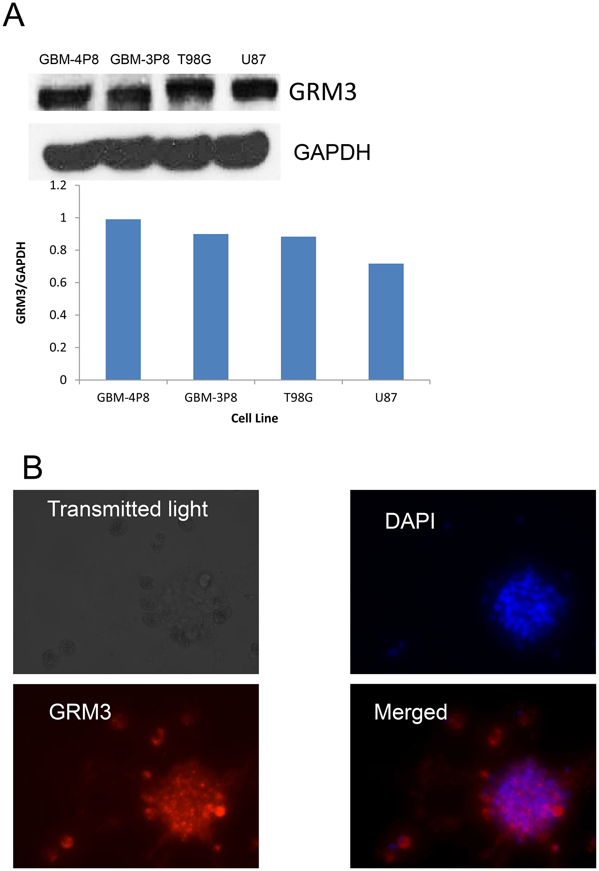 GRM3 is expressed in human gliomas.