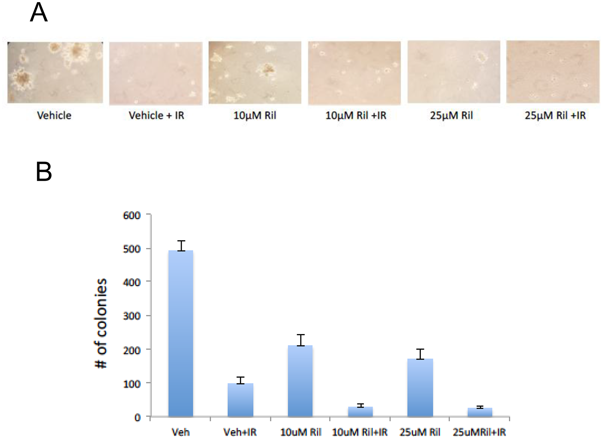RIL + RT reduces anchorage-independent colony growth of glioma cells.
