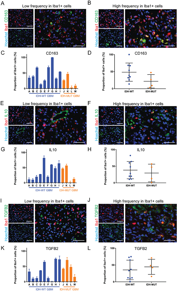 Anti-inflammatory markers are differentially expressed by GAMMs.