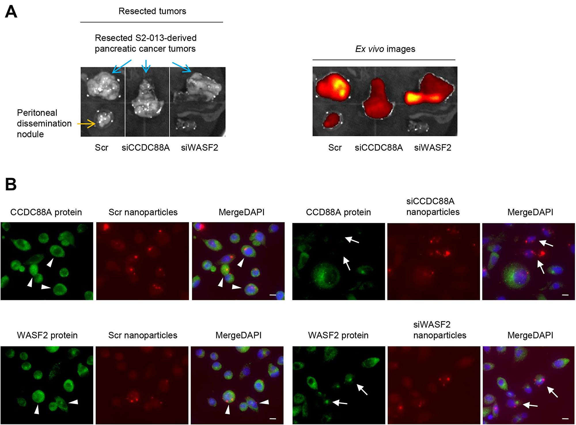 Effect of target siRNA-FA-PEG-COL nanoparticles on silencing of the targets in the orthotopic mouse model of PDAC.