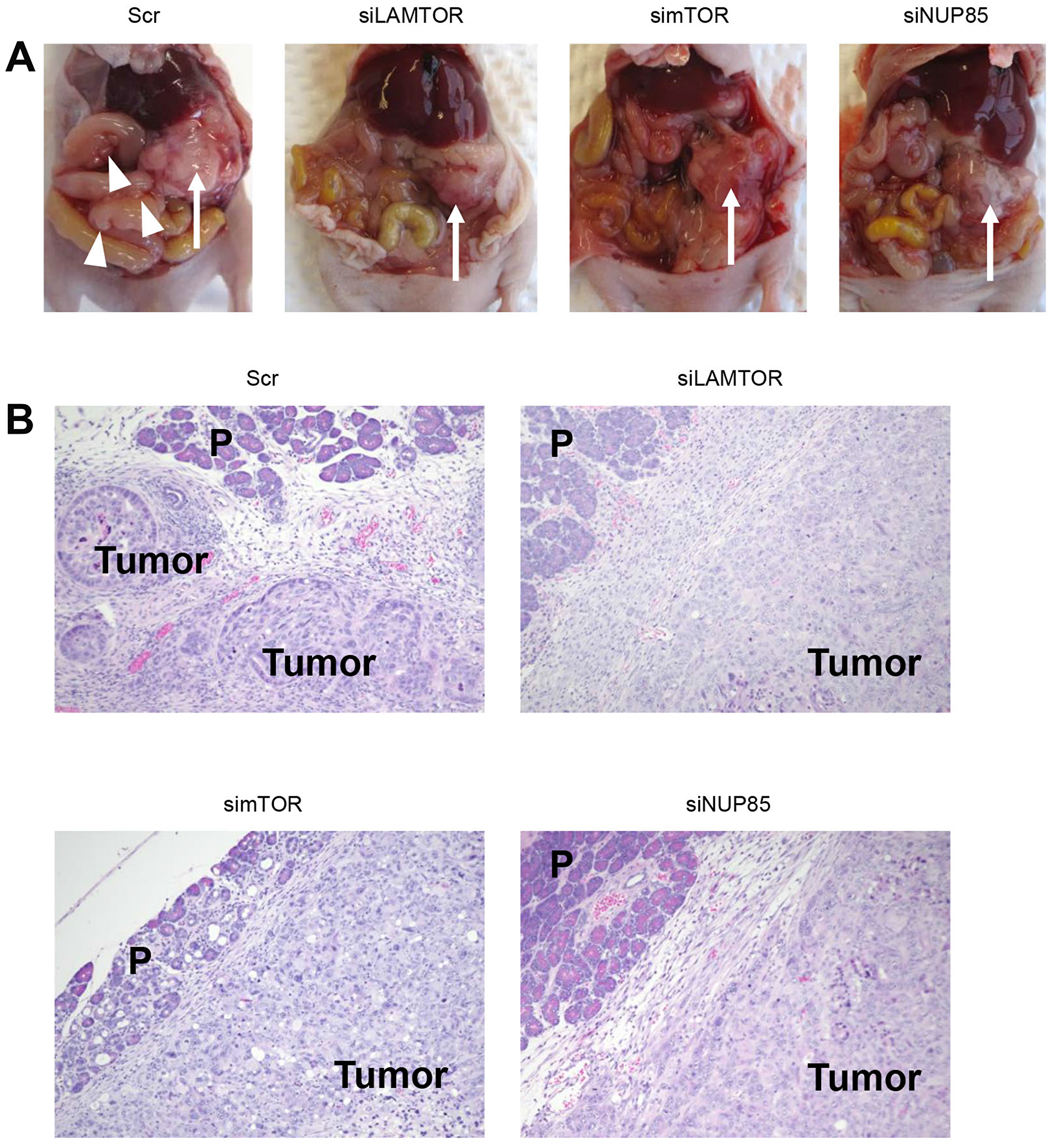 Disease progression in the orthotopic mouse model of PDAC.