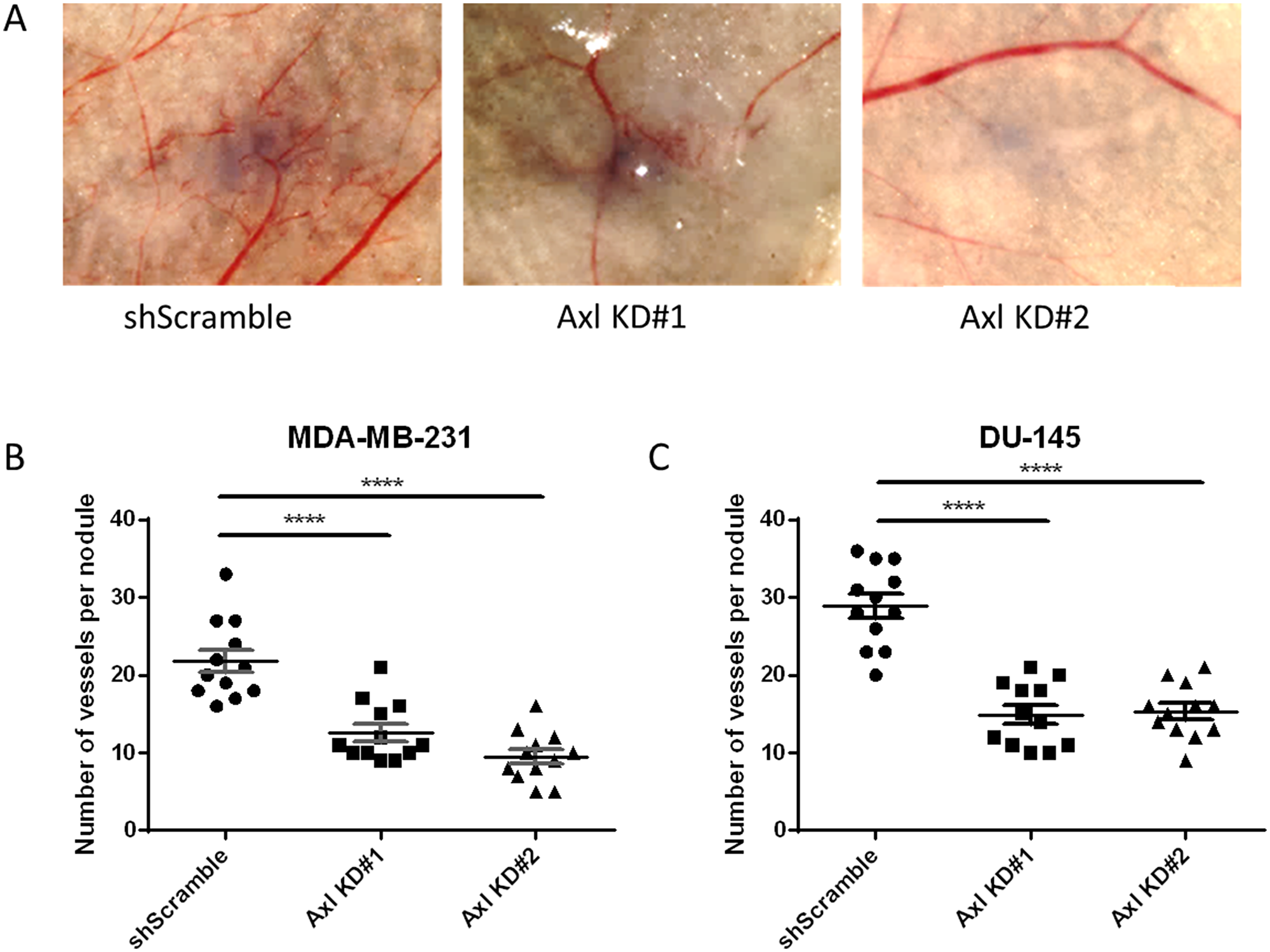 Axl knockdown of tumor cells suppresses tumor cell-induced angiogenesis in vivo.