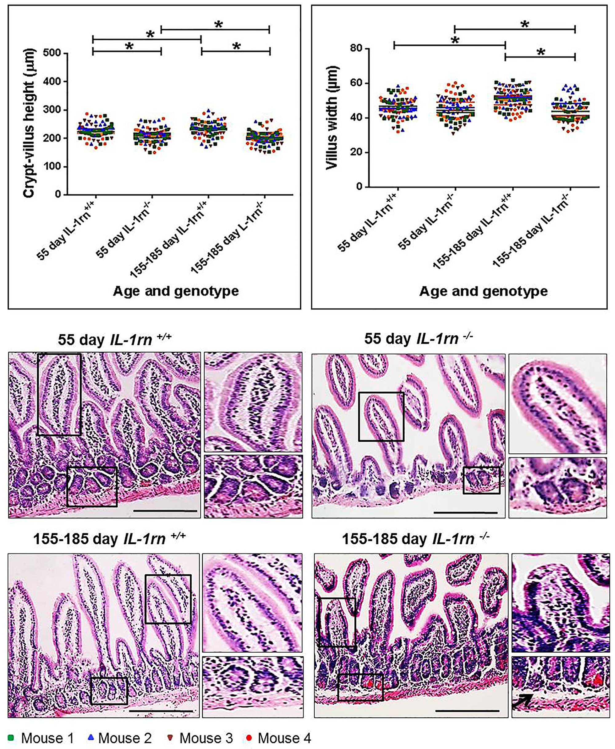 Histological analysis and morphology of the intact well-oriented crypt-villus axis heights and villus widths of Ileum in the 55 day old IL-1rn-/- mice and 155-185 day old IL-1rn-/- mice compared to age-matched wild-type mice.